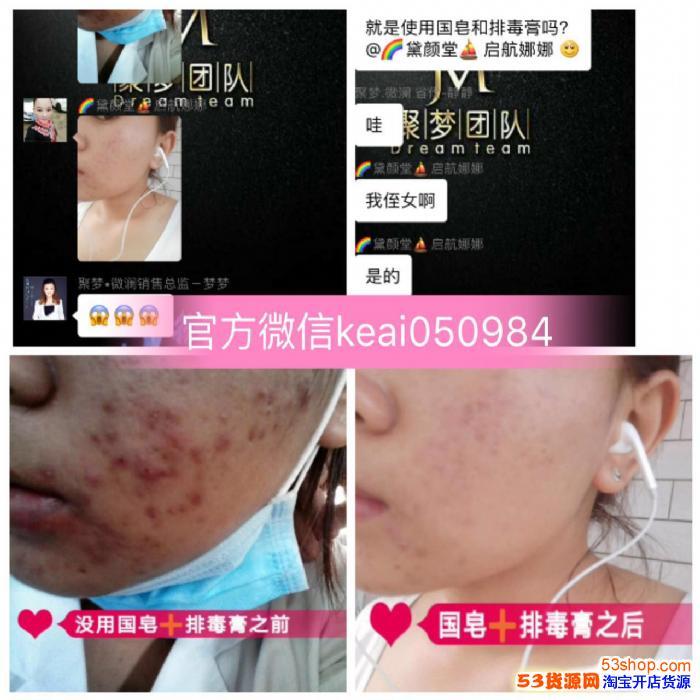 颜如玉排毒膏可以修复过敏皮肤吗?可以修复变薄的角质层吗?