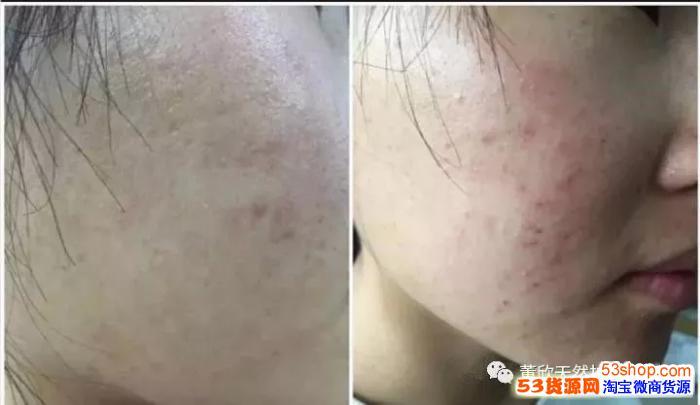 董欣马迷纯露功效与作用,是祛痘闭合性粉刺的克星?