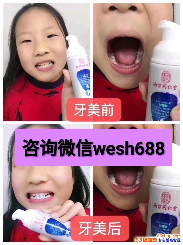 七大伤牙坏习惯你中招了没?牙美功效是什么?
