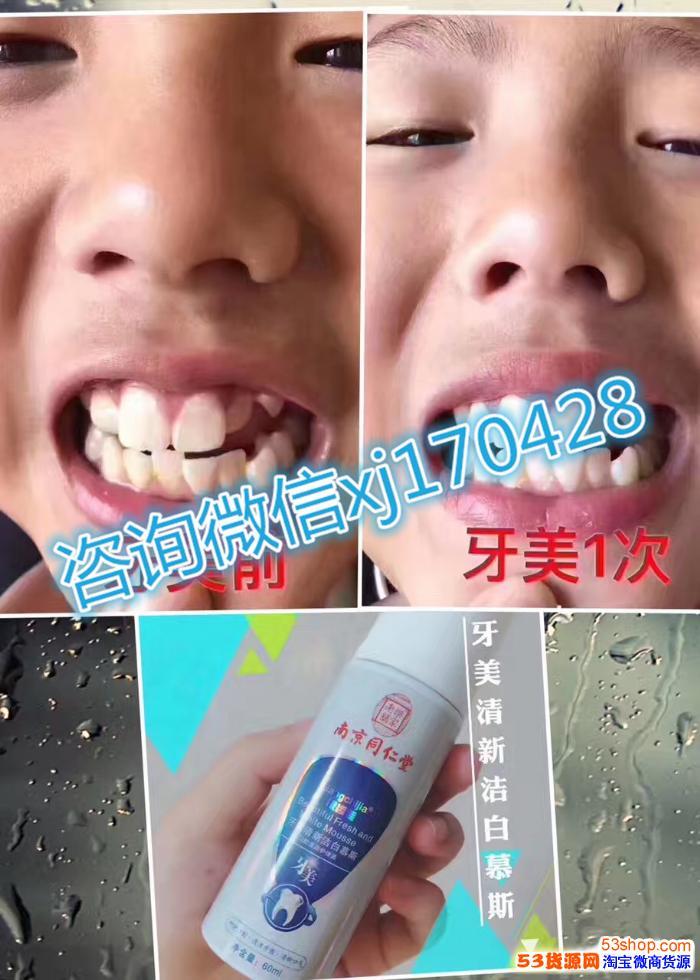 为什么使用牙美?产品功效好吗?